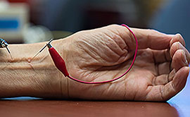 Research how acupuncture can improve cardiovascular function